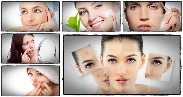 Curar acne rápido