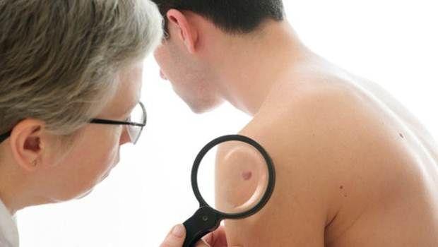 Comece sinais de câncer de pele iniciais que você precisa saber - 8 sinais