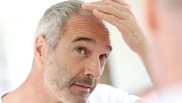 Como parar a perda de cabelo em homens e mulheres naturalmente - 7 Dicas rápidas