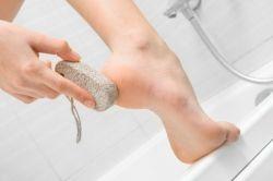 remover a pele morta
