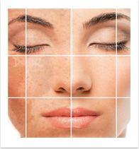 A pigmentação da pele cura