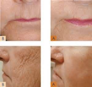 Dicas para endurecimento da pele