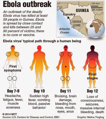 Sinais e sintomas do Ebola